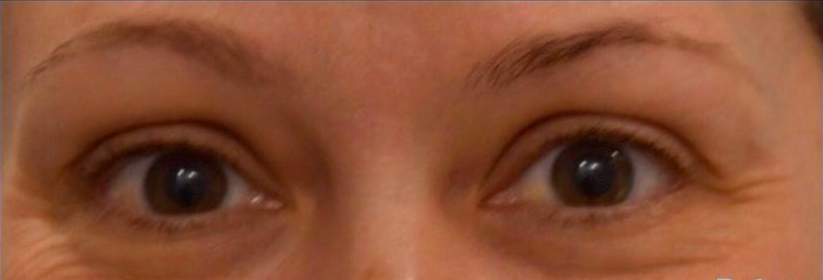 å tone non surgical facelift - under eye and brow lift